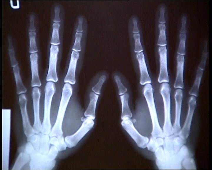 external image radiografia.jpg